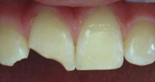 Zahnfraktur nach Unfall