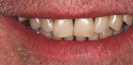 Dunkle Zahnzwischenräume beim Lachen